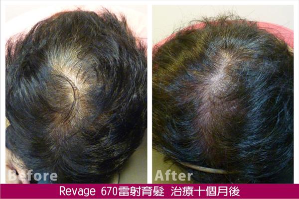 治療案例:徐小姐/51歲