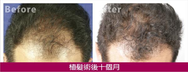 植髮術後10個月