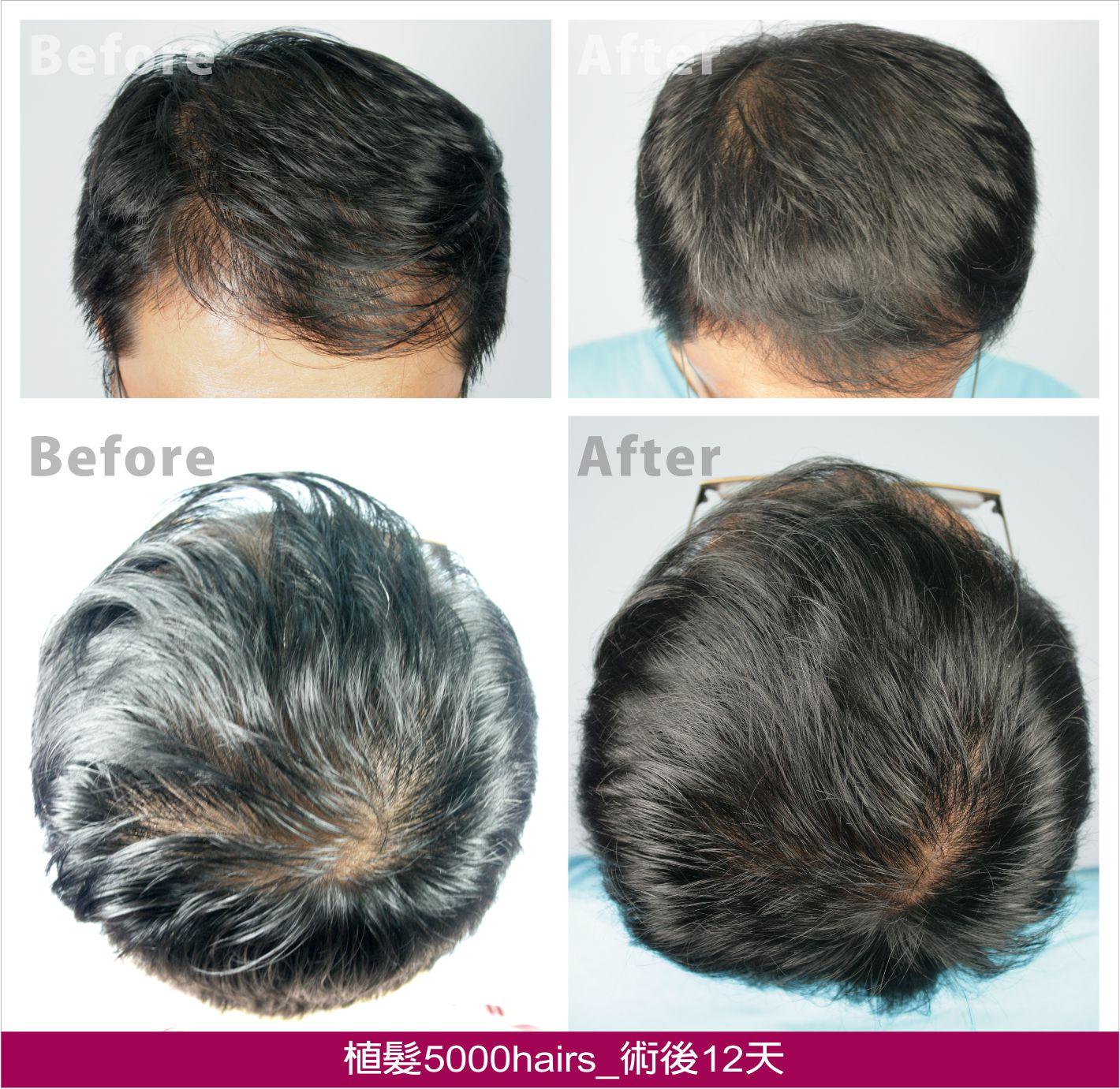 广州生发植发