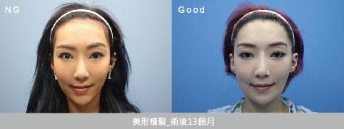 女性植髮術前術後圖
