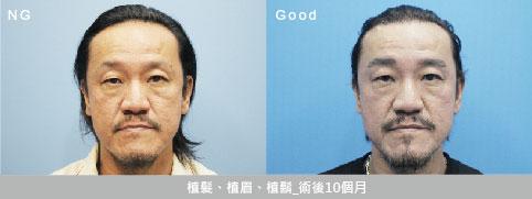 男性植髮術前術後圖