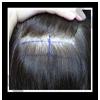 取髮前會將捐贈區標記出來,並且將捐贈區周圍的頭髮些微剃除(約0.5cm)以方便傷口縫合。