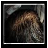 傷口縝密縫合,後枕部的頭髮長度只需3-5cm就足以遮掩傷口。