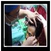 醫師會先依照先前評估,規劃出植髮區